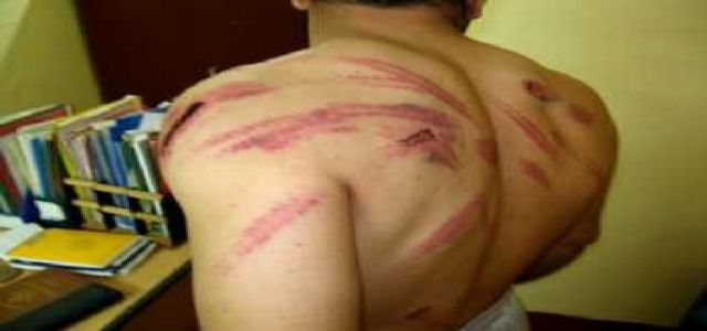 BACKGROUND: 'Dirty and seamless': Egypt's torture is our torture (Chris Hedges)